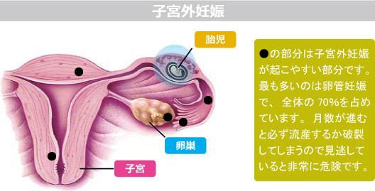 外 妊娠 症状 子宮